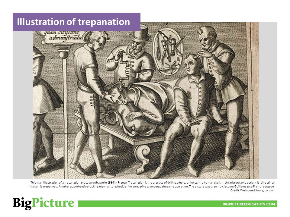 BIGPICTUREEDUCATION.COM This set has all the equipment necessary to carry out the trepanation procedure.