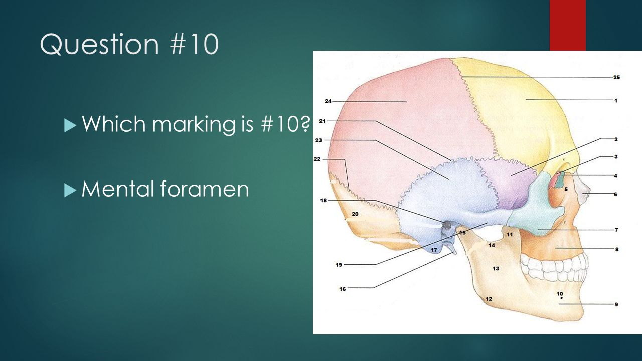 Question #10  Which marking is #10?  Mental foramen