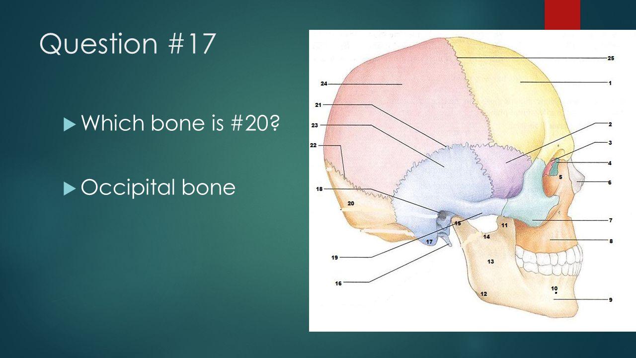 Question #17  Which bone is #20?  Occipital bone