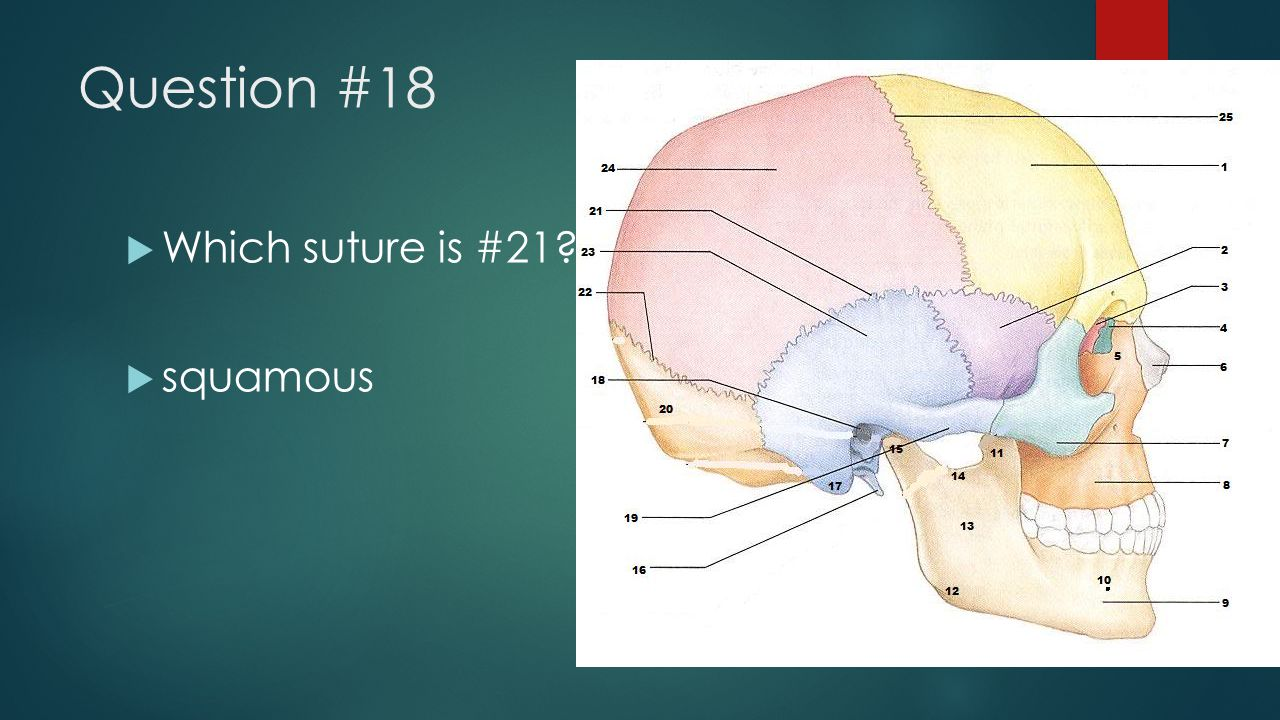 Question #18  Which suture is #21?  squamous