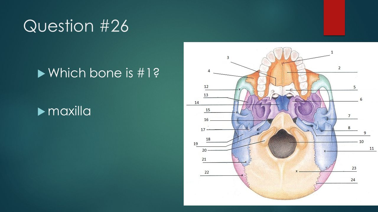Question #26  Which bone is #1?  maxilla