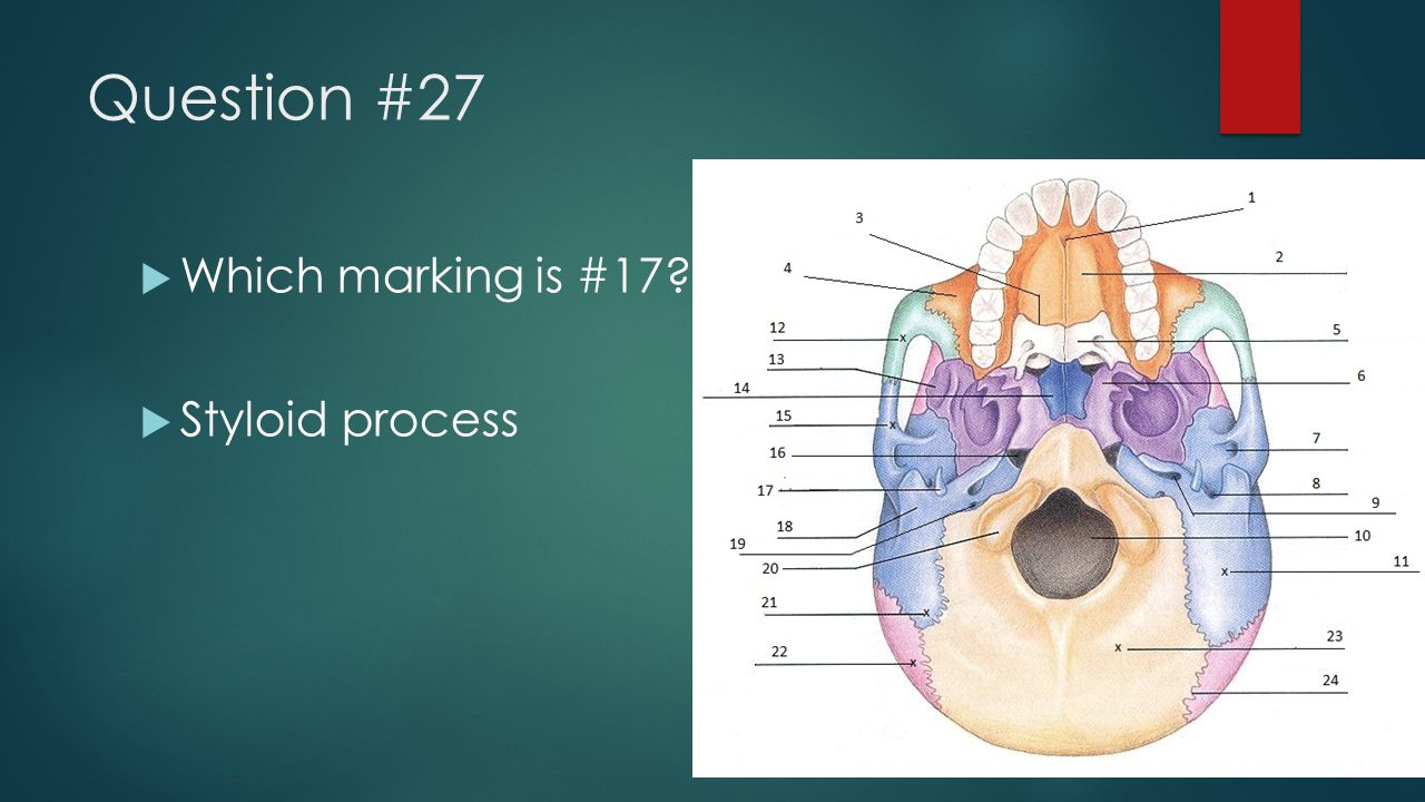 Question #27  Which marking is #17?  Styloid process