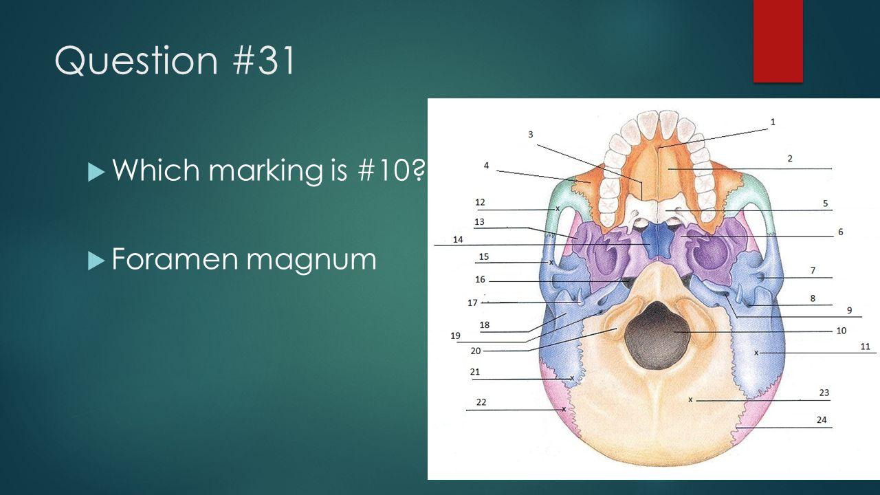 Question #31  Which marking is #10?  Foramen magnum