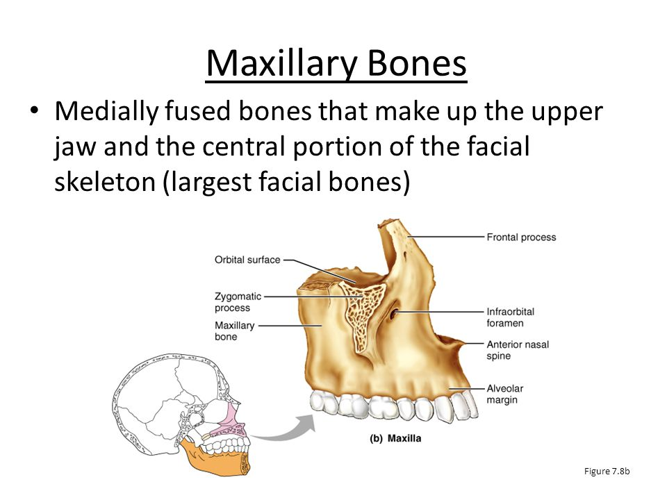 Mandible The mandible (lower jawbone) is the strongest bone of the face Figure 7.8a