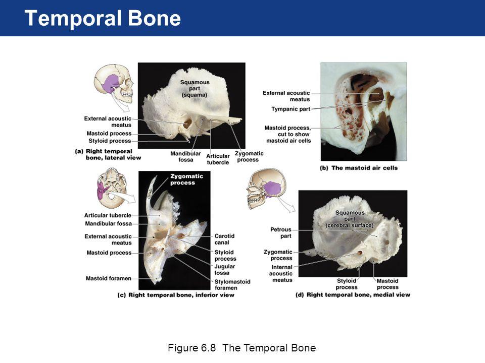 Figure 6.8 The Temporal Bone Temporal Bone