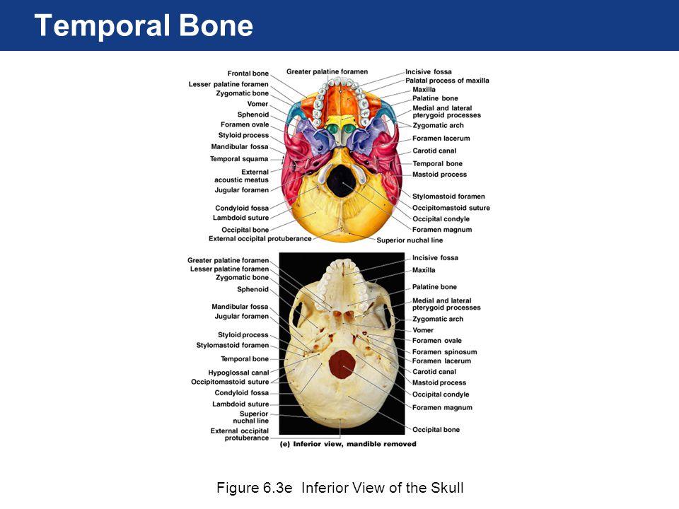 Figure 6.3e Inferior View of the Skull Temporal Bone