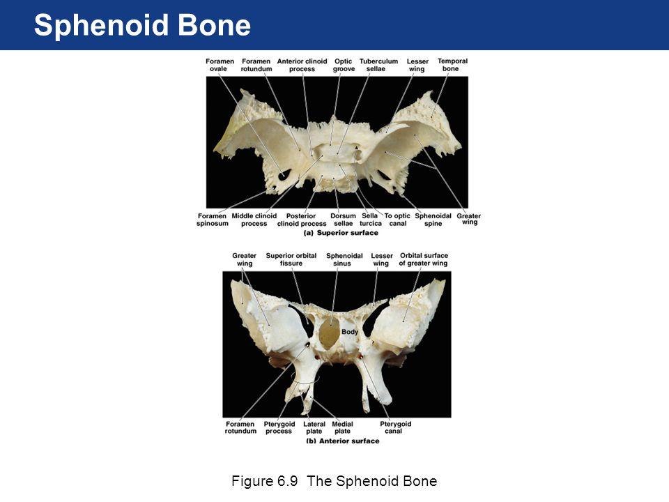 Figure 6.9 The Sphenoid Bone Sphenoid Bone