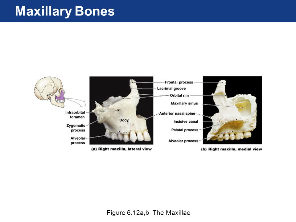 Figure 6.12a,b The Maxillae Maxillary Bones