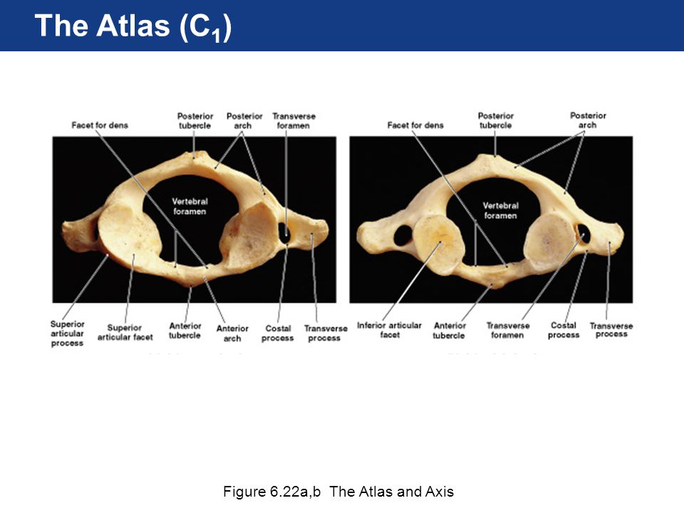 Figure 6.22a,b The Atlas and Axis The Atlas (C 1 )