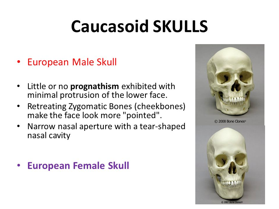 Caucasoid SKULLS European Male Skull Little or no prognathism exhibited with minimal protrusion of the lower face.