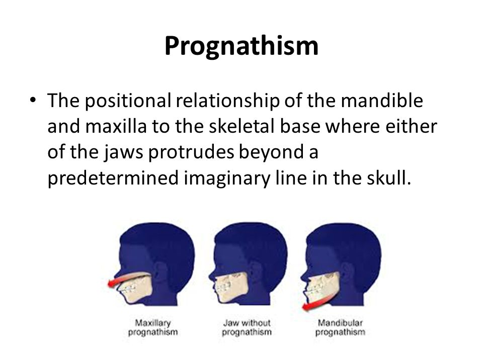 Prognathism The positional relationship of the mandible and maxilla to the skeletal base where either of the jaws protrudes beyond a predetermined imaginary line in the skull.