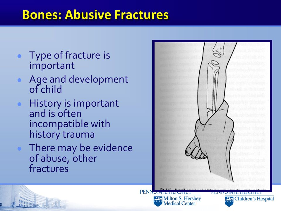 Femur-Torus fracture