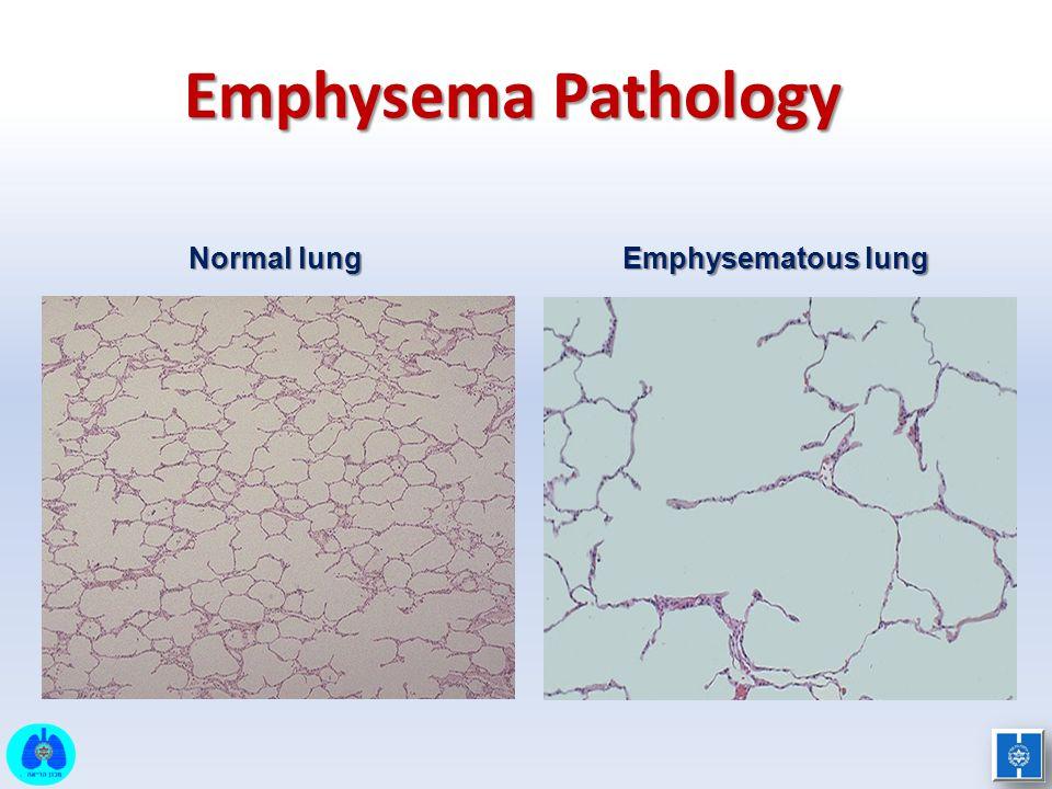 Emphysema Pathology Normal lung Emphysematous lung