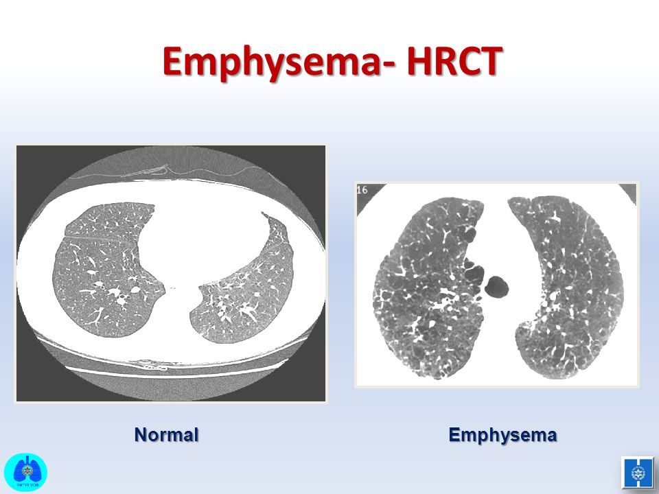 Emphysema- HRCT NormalEmphysema