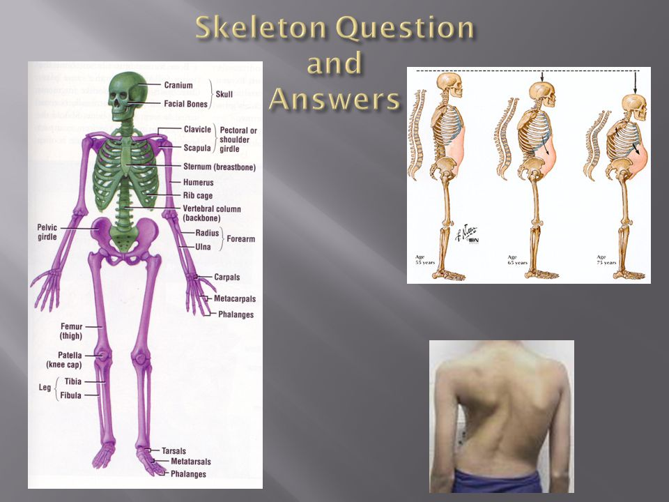  As we age the skeleton loses bone mass.