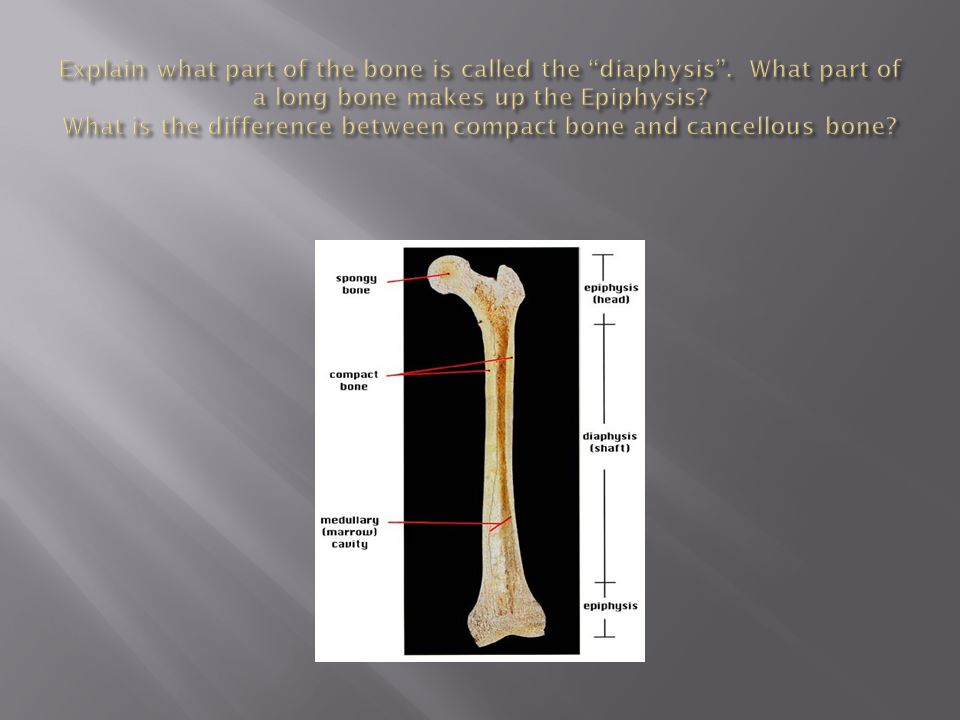  When the joint is pushed past its extreme range of motion then the ligaments that hold it in place as well as other soft tissues may tear.
