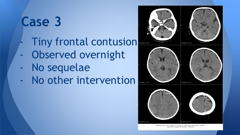 -Tiny frontal contusion -Observed overnight -No sequelae -No other intervention Case 3