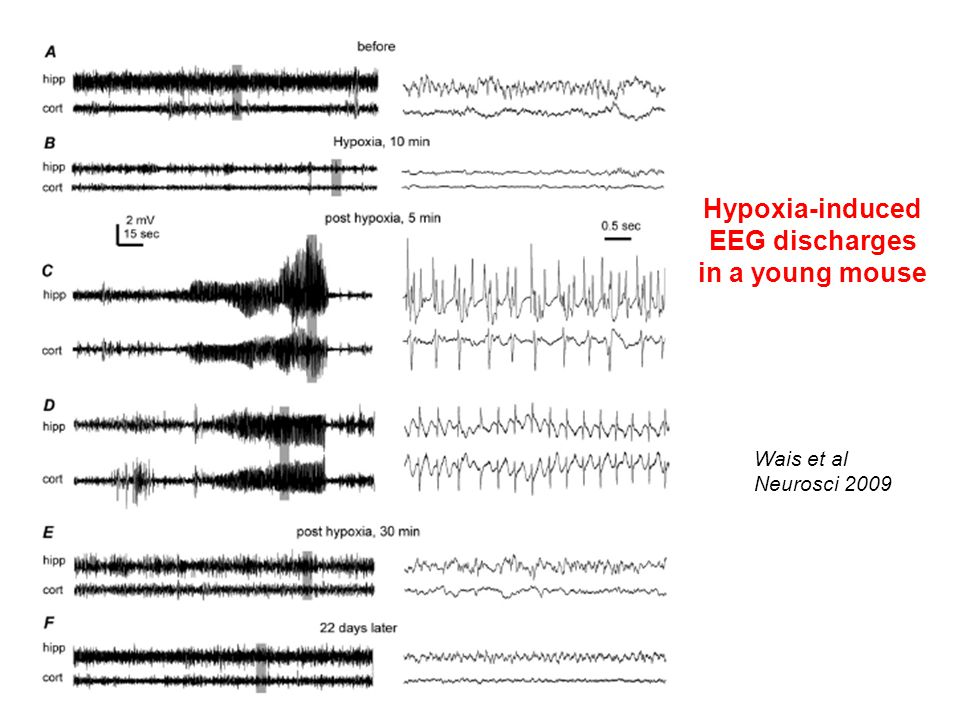 Hypoxia-induced EEG discharges in a young mouse Wais et al Neurosci 2009