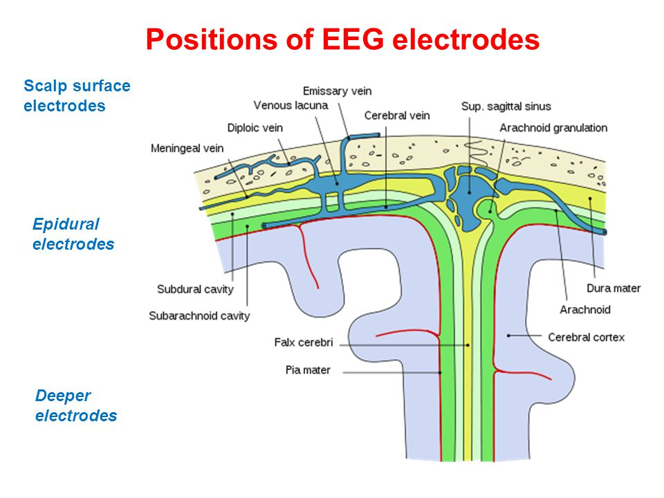 Positions of EEG electrodes Epidural electrodes Scalp surface electrodes Deeper electrodes