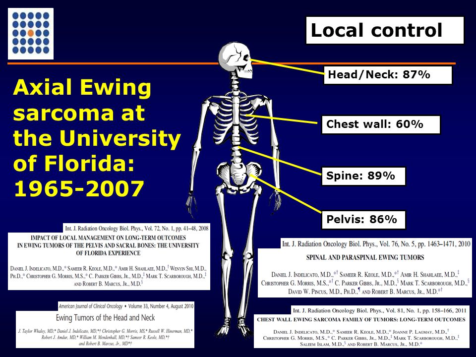 Spine: 89% Chest wall: 60% Pelvis: 86% Local control Head/Neck: 87% Axial Ewing sarcoma at the University of Florida: 1965-2007