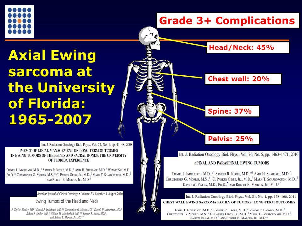 Spine: 37% Chest wall: 20% Pelvis: 25% Grade 3+ Complications Head/Neck: 45% Axial Ewing sarcoma at the University of Florida: 1965-2007