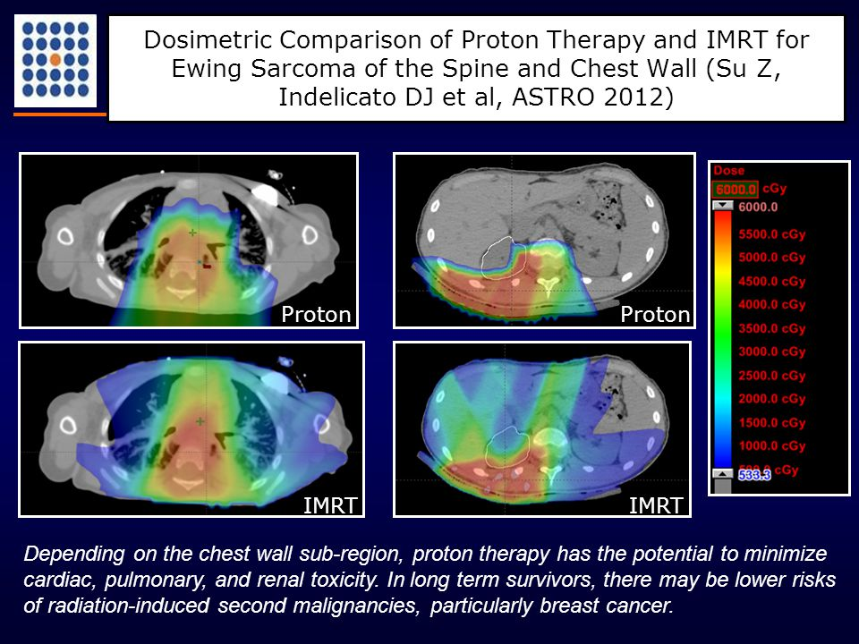 Dosimetric Comparison of Proton Therapy and IMRT for Ewing Sarcoma of the Spine and Chest Wall (Su Z, Indelicato DJ et al, ASTRO 2012) Depending on th