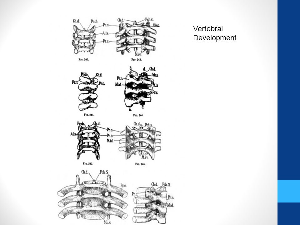 Vertebral Development