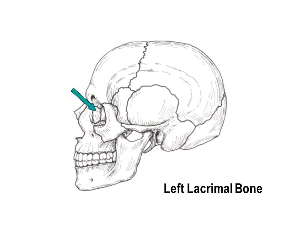 Left Lacrimal Bone