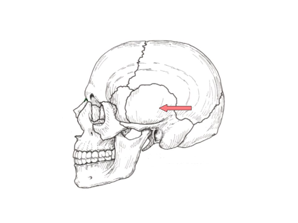 Coronal Suture Articulation between Frontal Bone and 2 Parietal Bones