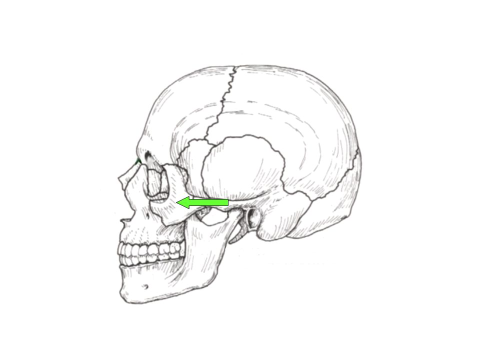 Left Zygomatic Bone