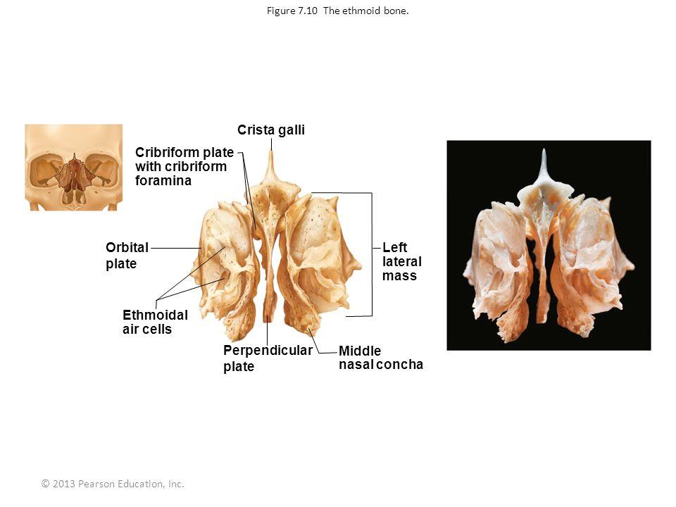 © 2013 Pearson Education, Inc. Figure 7.10 The ethmoid bone. Crista galli Cribriform plate with cribriform foramina Left lateral mass Orbital plate Et