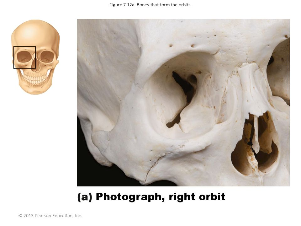 © 2013 Pearson Education, Inc. Figure 7.12a Bones that form the orbits. Photograph, right orbit