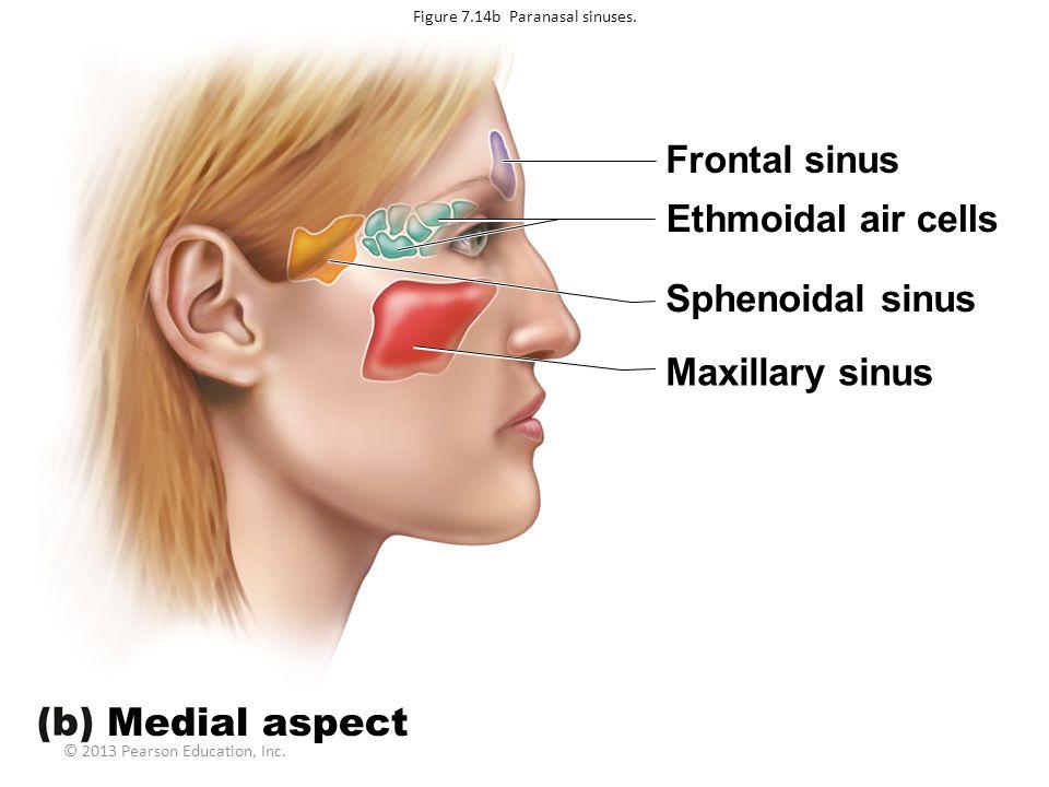 © 2013 Pearson Education, Inc. Frontal sinus Ethmoidal air cells Sphenoidal sinus Maxillary sinus Medial aspect Figure 7.14b Paranasal sinuses.