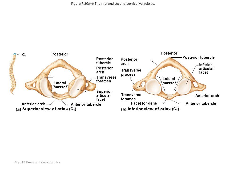© 2013 Pearson Education, Inc. Anterior arch Anterior tubercle Superior articular facet Transverse foramen Posterior arch Posterior tubercle C1C1 Post