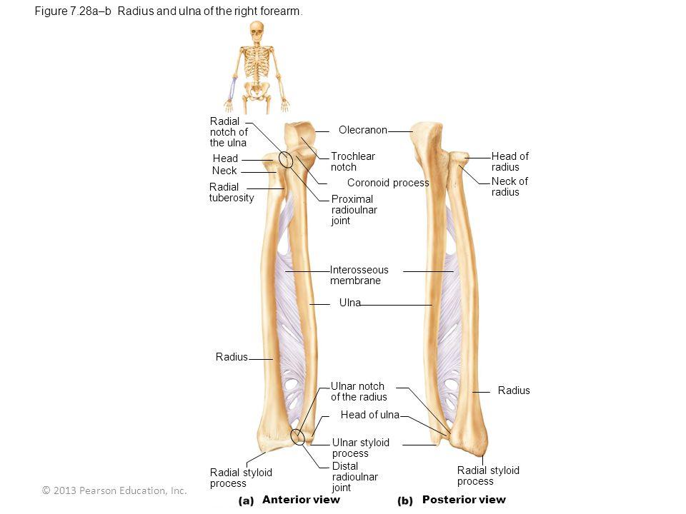 © 2013 Pearson Education, Inc. Radial notch of the ulna Head Neck Radial tuberosity Olecranon Trochlear notch Coronoid process Proximal radioulnar joi