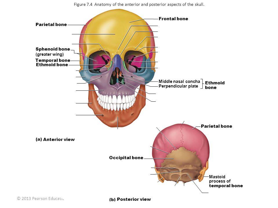 © 2013 Pearson Education, Inc. Parietal bone Squamous part of frontal bone Nasal bone Sphenoid bone (greater wing) Temporal bone Ethmoid bone Lacrimal