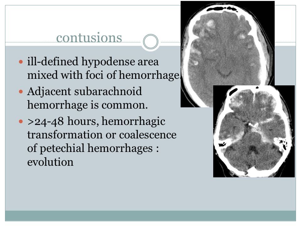 contusions ill-defined hypodense area mixed with foci of hemorrhage. Adjacent subarachnoid hemorrhage is common. >24-48 hours, hemorrhagic transformat