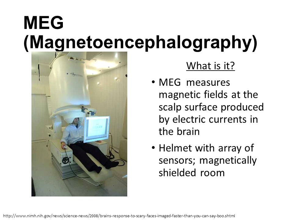 MEG (Magnetoencephalography) What is it? MEG measures magnetic fields at the scalp surface produced by electric currents in the brain Helmet with arra