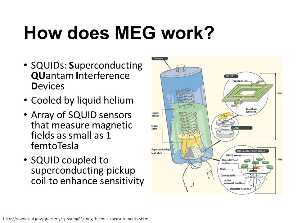 How does MEG work? SQUIDs: Superconducting QUantam Interference Devices Cooled by liquid helium Array of SQUID sensors that measure magnetic fields as