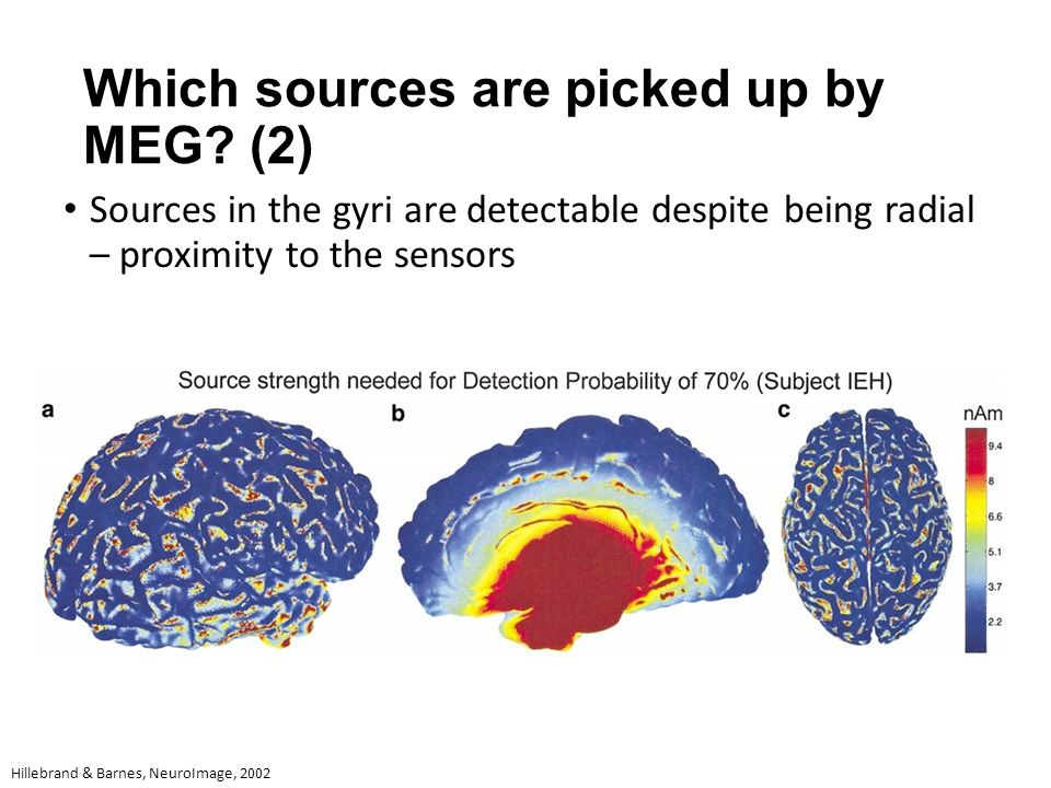 Which sources are picked up by MEG? (2) Sources in the gyri are detectable despite being radial – proximity to the sensors Hillebrand & Barnes, NeuroI