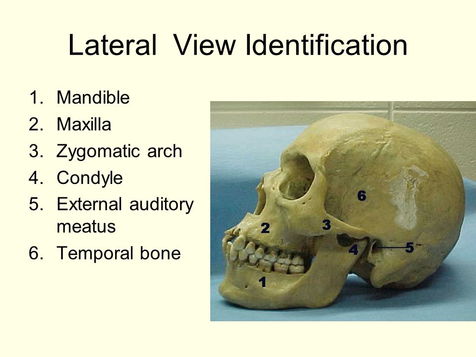 Lateral View Identification 1.Mandible 2.Maxilla 3.Zygomatic arch 4.Condyle 5.External auditory meatus 6.Temporal bone