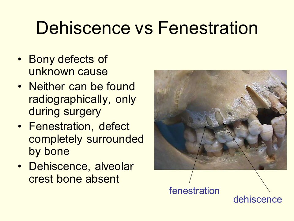 Dehiscence vs Fenestration Bony defects of unknown cause Neither can be found radiographically, only during surgery Fenestration, defect completely surrounded by bone Dehiscence, alveolar crest bone absent dehiscence fenestration