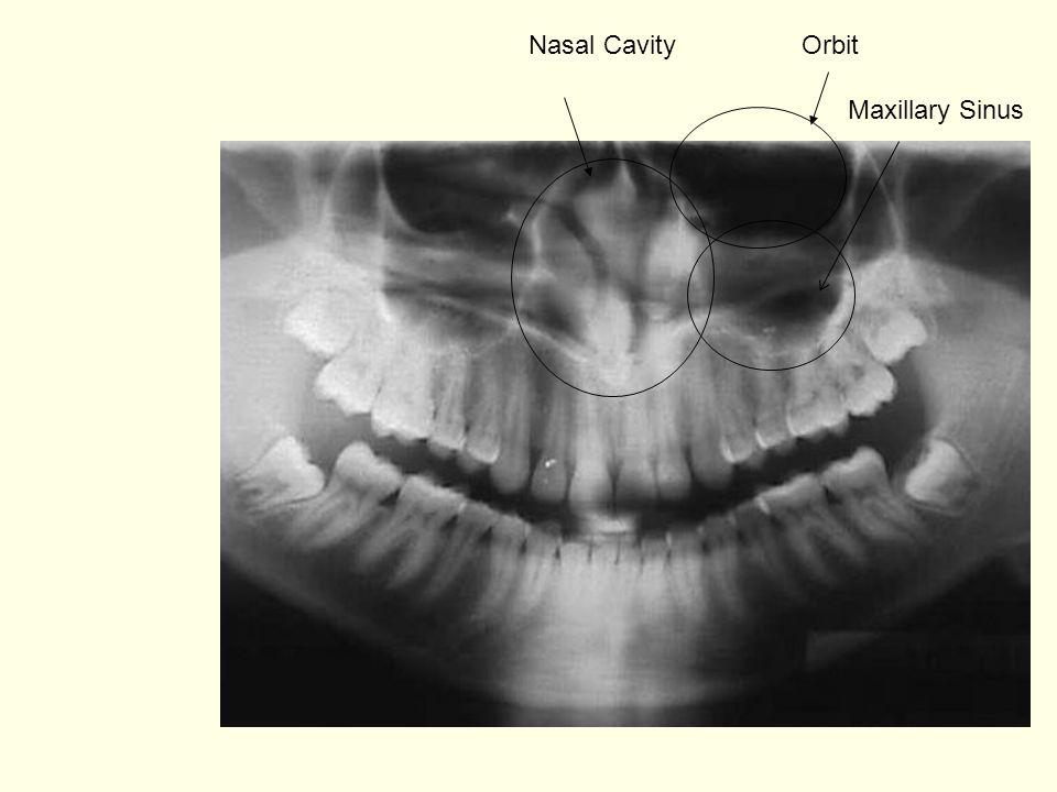 Maxillary Sinus Nasal CavityOrbit
