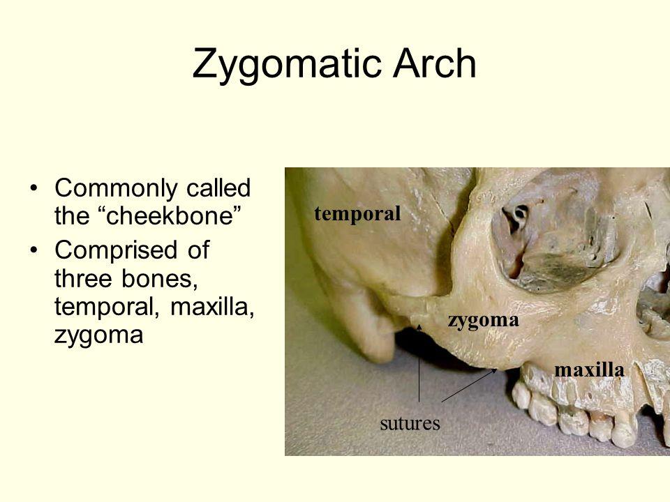 """Zygomatic Arch Commonly called the """"cheekbone"""" Comprised of three bones, temporal, maxilla, zygoma maxilla zygoma temporal sutures"""
