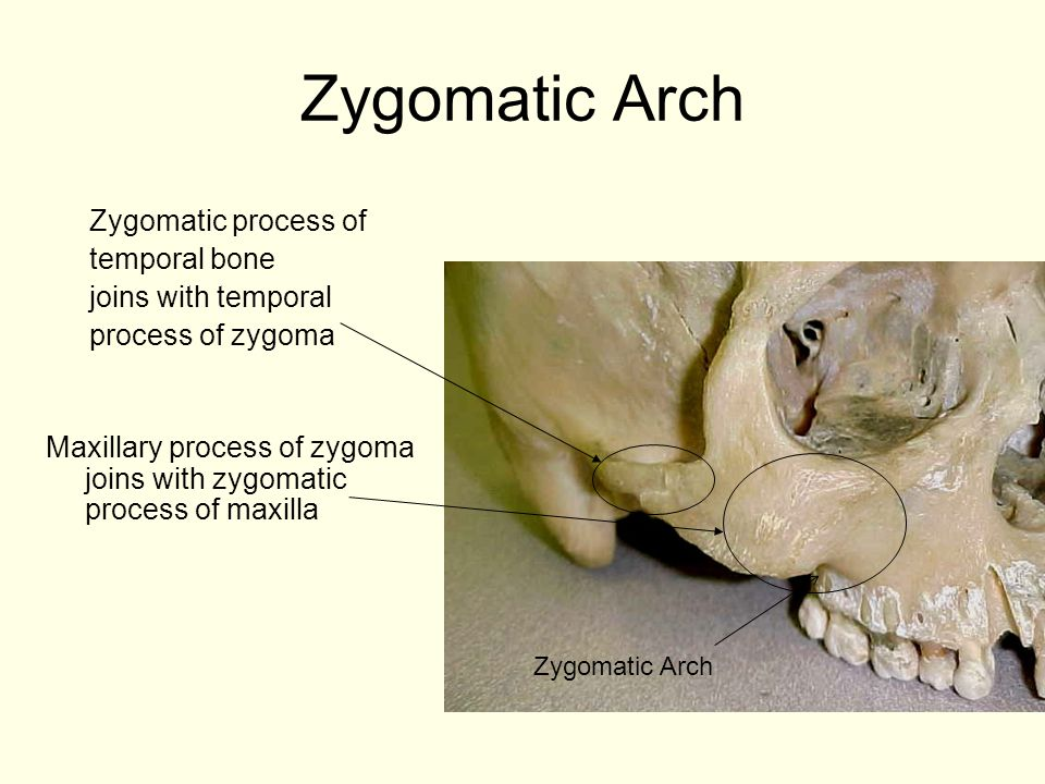 Zygomatic Arch Maxillary process of zygoma joins with zygomatic process of maxilla Zygomatic process of temporal bone joins with temporal process of z