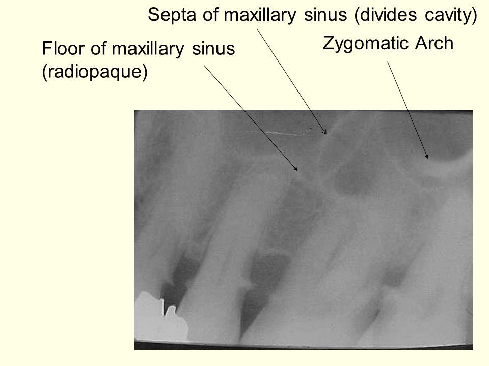 Floor of maxillary sinus (radiopaque) Zygomatic Arch Septa of maxillary sinus (divides cavity)