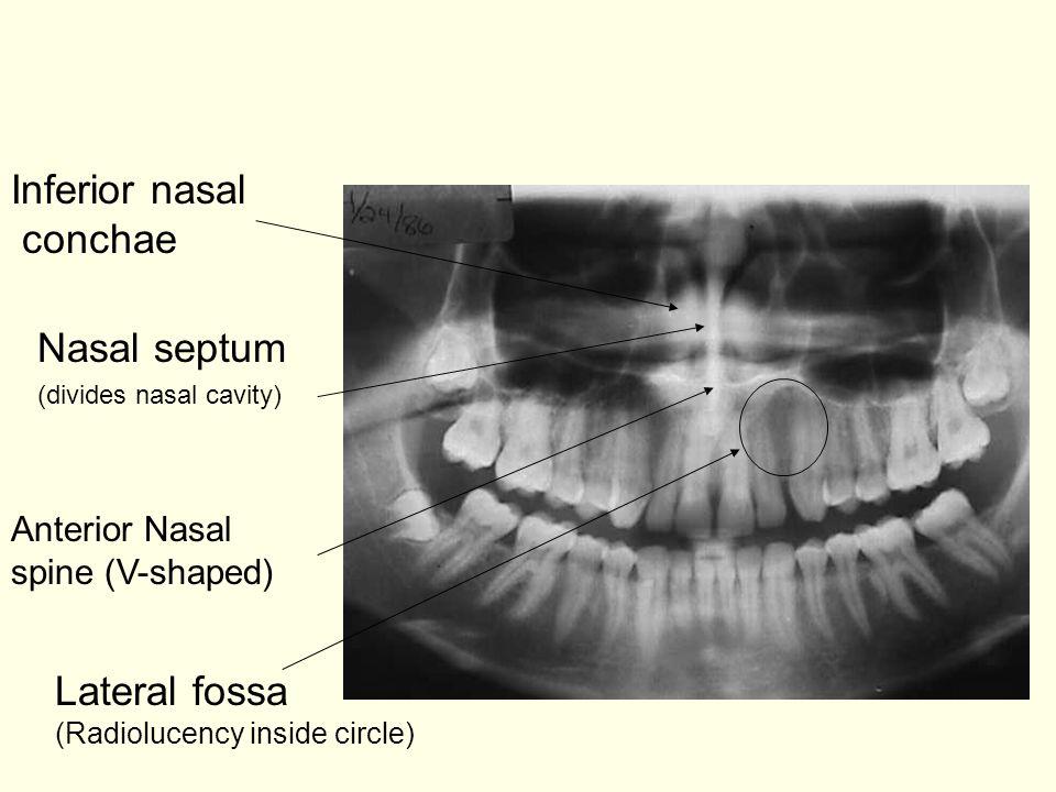 Nasal septum (divides nasal cavity) Anterior Nasal spine (V-shaped) Lateral fossa (Radiolucency inside circle) Inferior nasal conchae