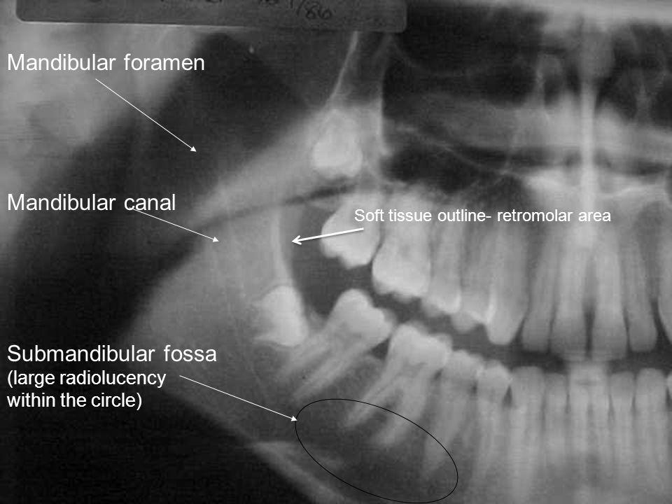 Mandibular foramen Mandibular canal Submandibular fossa (large radiolucency within the circle) Soft tissue outline- retromolar area