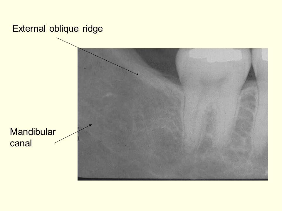 Mandibular canal External oblique ridge