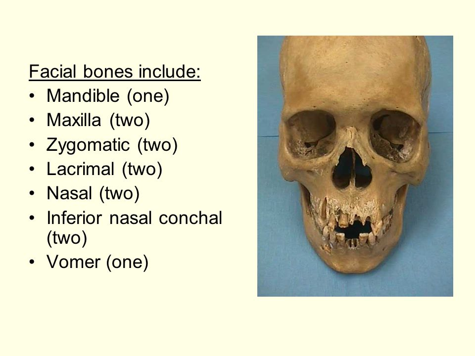 Facial bones include: Mandible (one) Maxilla (two) Zygomatic (two) Lacrimal (two) Nasal (two) Inferior nasal conchal (two) Vomer (one)